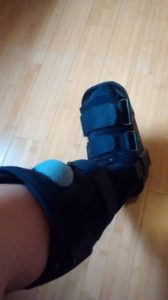 walking boot broken bone foot